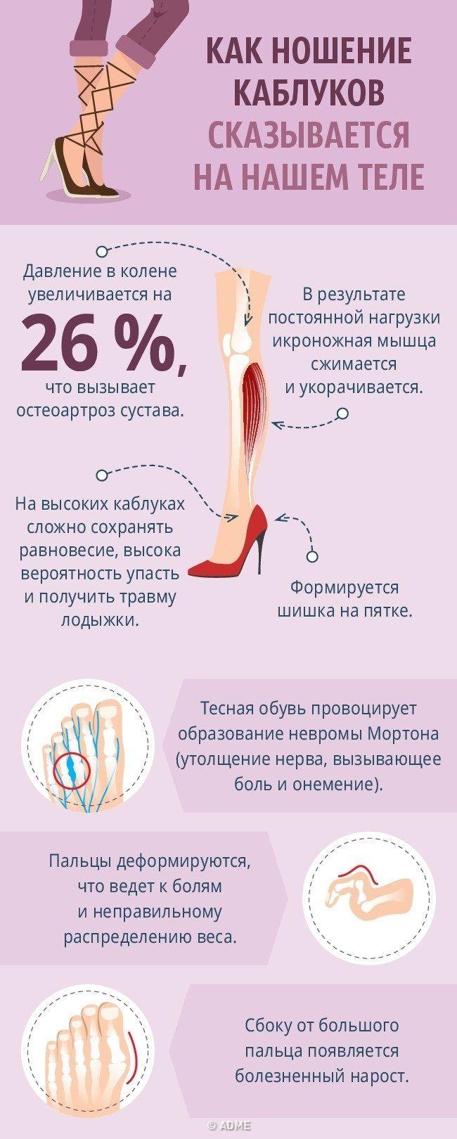 Как носить обувь на каблуках без вреда для здоровья / Все для женщины