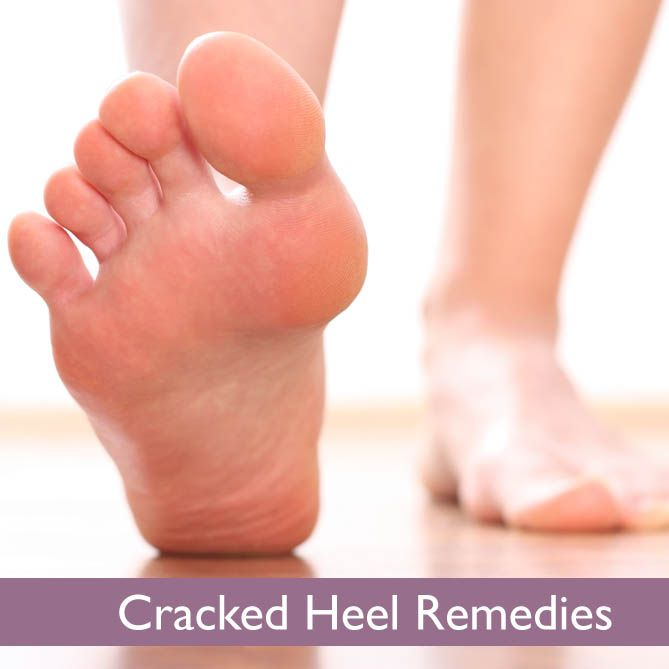 how to take care of dry cracked heels