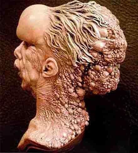 Bust of Joseph Merrick- Elephant Man