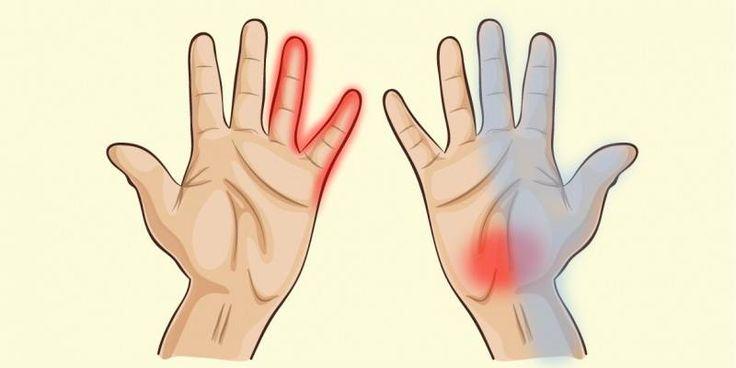 le mani Le mani ci mostrano che può esserci qualcosa che non funziona nel nostro organismo. Dalle nostre mani possiamo venire a con