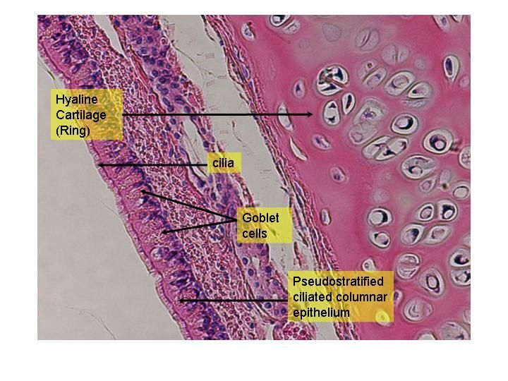 Trachea Histology Labeled Google Search Medical Science