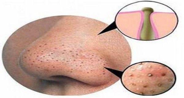 L'acné est une affection de la peau qui se manifeste par différents types. Ceux-ci peuvent être points noirs, blancs, des boutons, ou des kystes. Ce phénomène est dit être un événement normal que presque tous