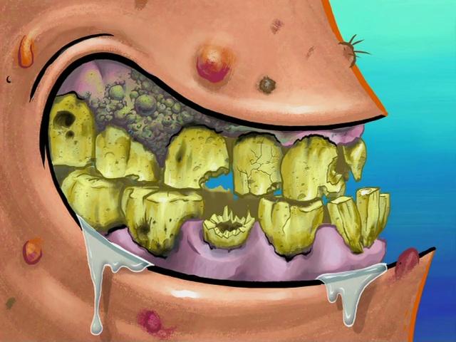 Patrick's Nasty Teeth   SpongeBob ♥   Pinterest   Patrick