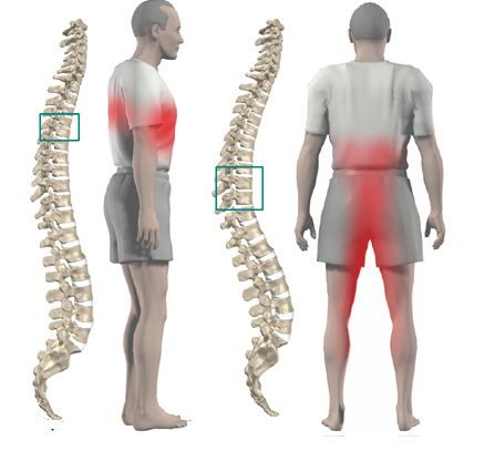 Mid Back Pain Exercises Middle Back Pain Exercise | Acute ...