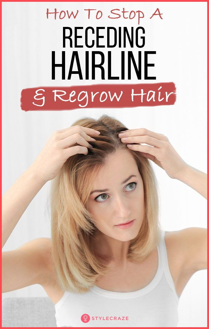 How To Stop A Receding Hairline And Regrow Hair Hair Regrow Hair