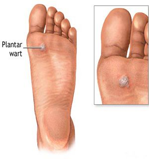 What causes plantar warts