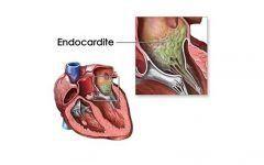 Endocardite – O que é, Causas, Sintomas e Tratamentos