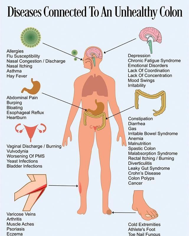 Pin On Colon Cleanse For Cancer Patients
