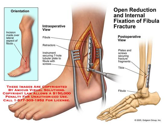 Distal Fibula Ankle Fracture |  ,drawing,ORIF,reduction
