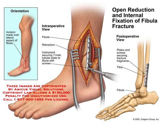 Distal Fibula Ankle Fracture | ... ,drawing,ORIF,reduction,fixation,fibula,fracture,surgery,repair