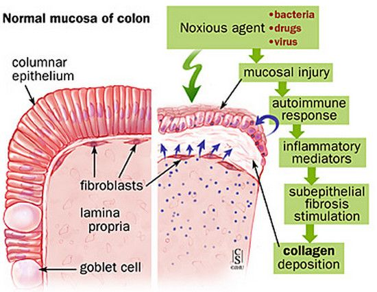12 best Collagenous Colitis images on Pinterest | Microscopic colitis, Cancer and Celiac disease