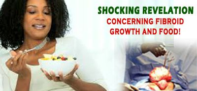 SHOCKING REVELATION CONCERNING FIBROID GROWTH AND FOOD - 247 Best Sellers Reviews