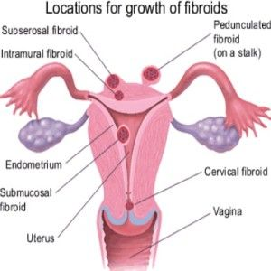 26 best all about fibroids images on pinterest uterine fibroids fibroids are slow growing benign tumors that develop within the uterine wall these tumors grow from the smooth muscle that is found in the wall of the ccuart Images