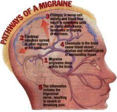 Prescription Migraine Medicine List!