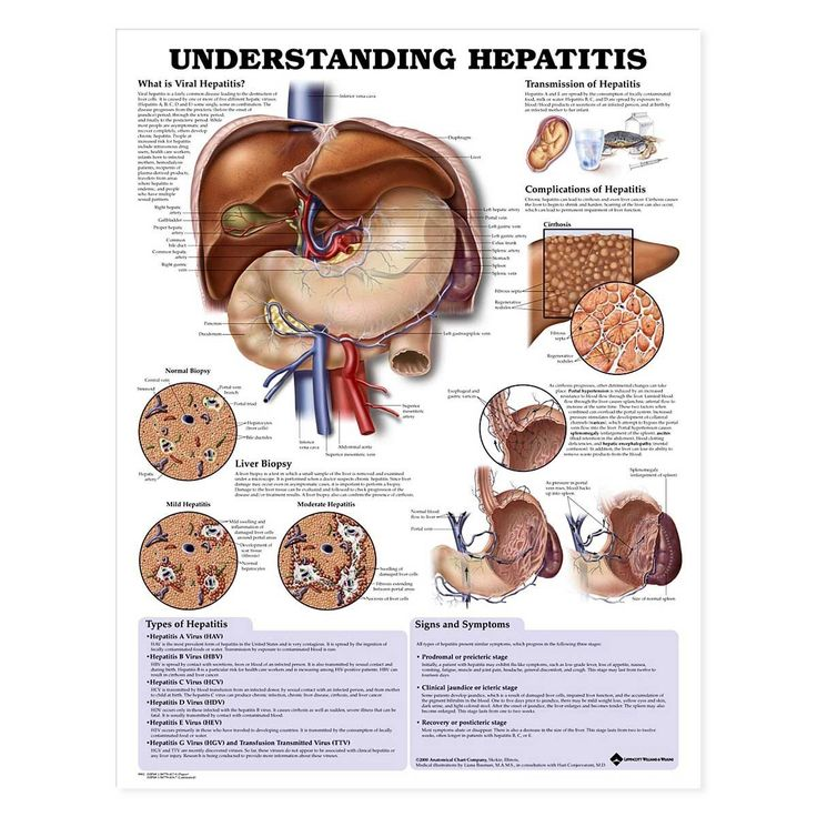 Understanding Hepatitis Anatomical Chart-Paper * Want to know more, click on the image.