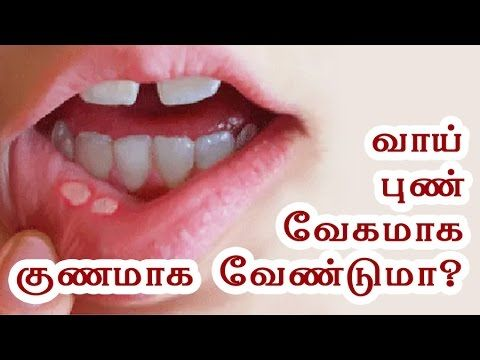 Mouth Ulcer Treatment at Home - Vaai Pun - Health Tips in Tamil - YouTube