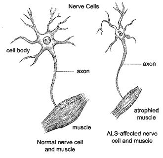 "Amyotrophic lateral sclerosis (ALS), otherwise known as ""Lou Gehrig's Disease"", is a disease which involves advancing neurodegenerative disease that has an effect on the nerve cells of the brain as well as the spinal cord."