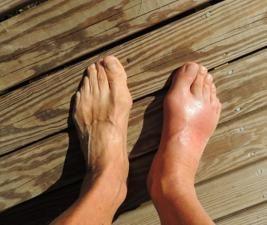 Asam urat yang tinggi dalam darah lambat laun bisa menyebabkan Gout athritis, yaitu sakit pada persendian akibat penumpukan kristal yang mengikis sendi. Kristal kristal ini terbentuk karena kelebihan asam urat dalam darah tidak seluruhnya bisa dikeluarkan tubuh melalui urin, dan pada akhirnya menumpuk pada persendian dan menyebabkan rasa sakit, pembengkakan dan gejala lain. Gout athritis … » Baca selengkapnya..