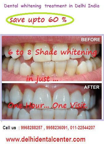 #Tooth_Whitening_Delhi #Tooth_Whitening_India #Laser_Tooth_Whitening_Delhi #Dentist_Delhi #Dentist_India http://goo.gl/3GWHWH
