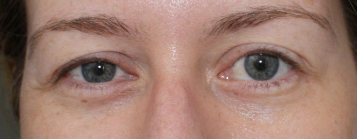 Exercises for drooping eyelids!