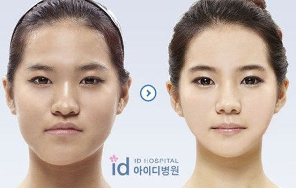 Young Koreans Before and After Extreme Plastic Surgery (50 pictures) #SkinWhiten…