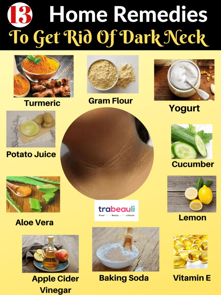 How to get rid of dark neck 13 natural home remedies