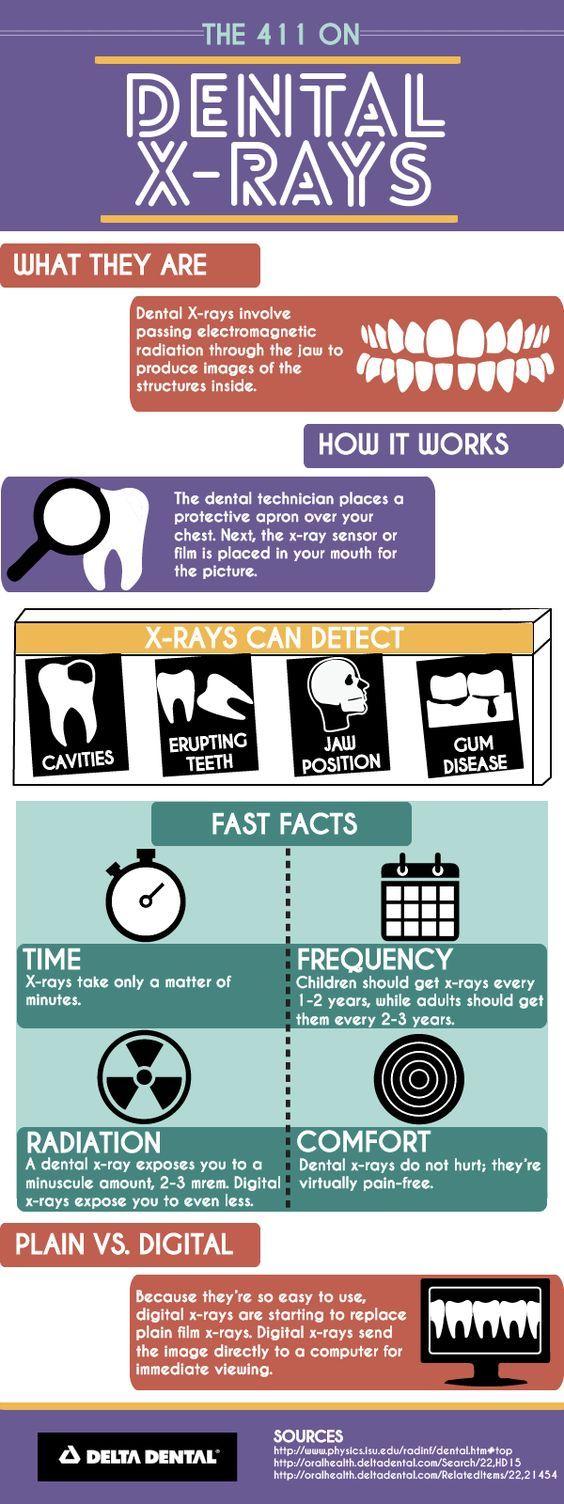 Dental X-rays | Delta Dental