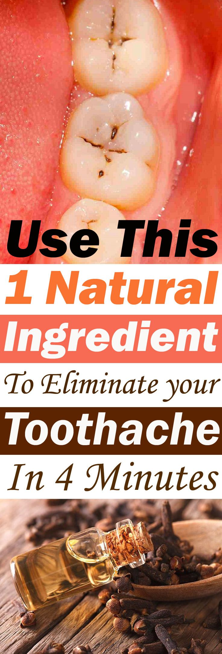 This spice has been used from ages to provide instant relief from a toothache, AND it's proven that it really works. If you want a quick relief must try this!