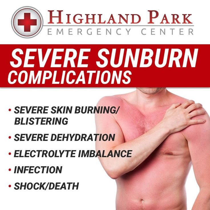 While severe #sunburns are rare, they do happen. If left untreated, complications can be severe and become life threatening. If you have a severe sunburn, make sure you seek the appropriate treatment at Highland Park Emergency Room immediately!  www.highlandparker.com | 214.443.8131
