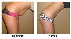 Abdominal Liposuction Cost