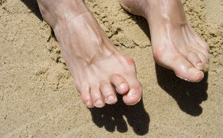 Best Ways You Can Treat and Prevent Hammertoe