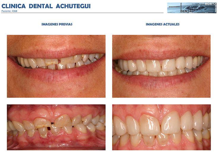 Tratamiento #Periodontal básico y #Carillas o #Facetas de Porcelana. Clínica Dental Achútegui Avda. de Madrid 32, Bajo - 20011 Donostia - San Sebastián 943 46 32 15 - 619 365 785 www.achuteguidental.com contacto@achuteguidental.com
