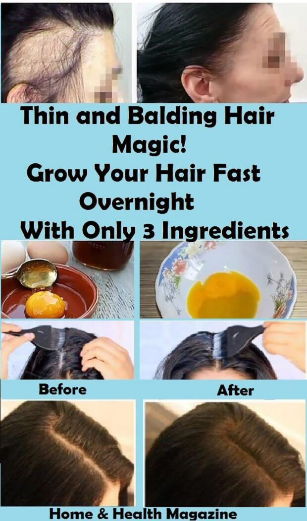 Thin And Balding Hair Magic Grow Your Hair Fast Overnight With