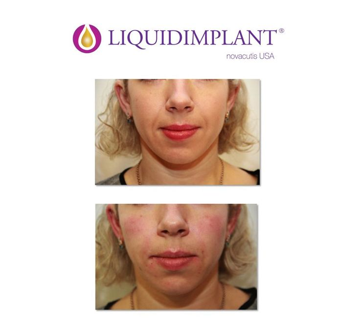 Liquidimplant fillers are formulated to last up to 18 months and easy to inject.  It's a complete filler line for facial rejuvenation. Below a before and after for Mid-face injection by Dr. Zenker.  #liquidimplant #dermalfillers #fillers #hyaluronicacid #novacutis #injectables #aestheticmedicine #dermatology #plasticsurgeon #antiage #hyaluronicacidfillers #injectablefillers #medicinaestetica #rellenosfaciales #acidohialuronico #antienvejecimiento #dermatologia #cirugiaplastica #inyectables