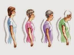 2 Key To Avoid Osteoporosis Despite Already Seniors