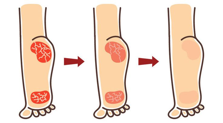 How to Heal Cracked Heels with Natural Ingredients?