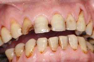 日本発、世界で300億本売れているスポーツドリンクがアナタの歯をボロボロにする。 | どくらぼ
