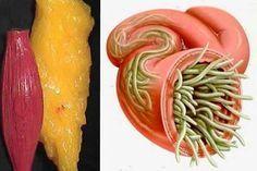 Semillas de lino y clavo seco es ideal para eliminar todo tipo de parásitos intestinales y de la manera más sencilla.