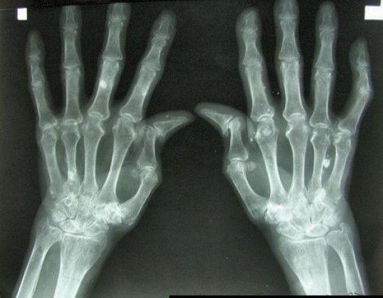 Artrose blijkt voedselallergie