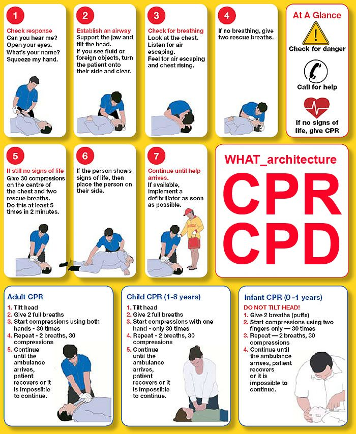 How to Give CPR to an Infant