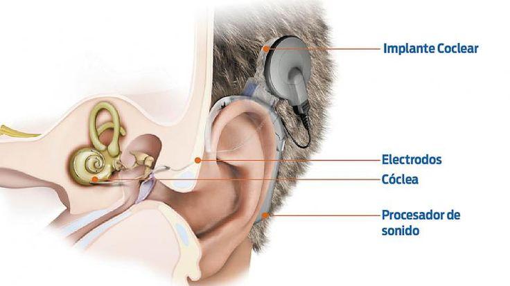 Un implante que permite recuperar la #audición.