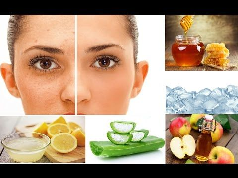 How to treat fast acne scars naturally and easily at home? -  CLICK HERE for the Acne No More program #acne #acnetreatment #acnetips #acnecare How to treat fast acne scars naturally and easily at home? 6 Most Effective Ways To Remove Acne Scars & Pimple Marks For many acne sufferers, the prospect of living blemish-free can easily lead to a medicine... - #Acne