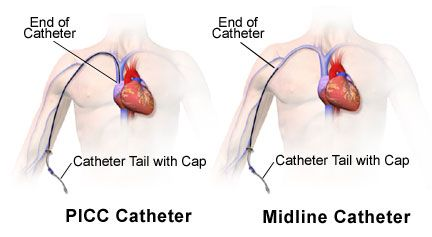 an essay on health care and the peripherally inserted central catheter picc What is a peripherally inserted central catheter (picc) call your health care provider if you peripherally inserted central catheters and nontunneled.