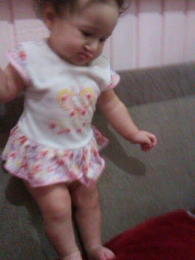 Vida de Princesa, lábio leporino: 6 Meses , Linguagem e Postura de bebês com Fissura...