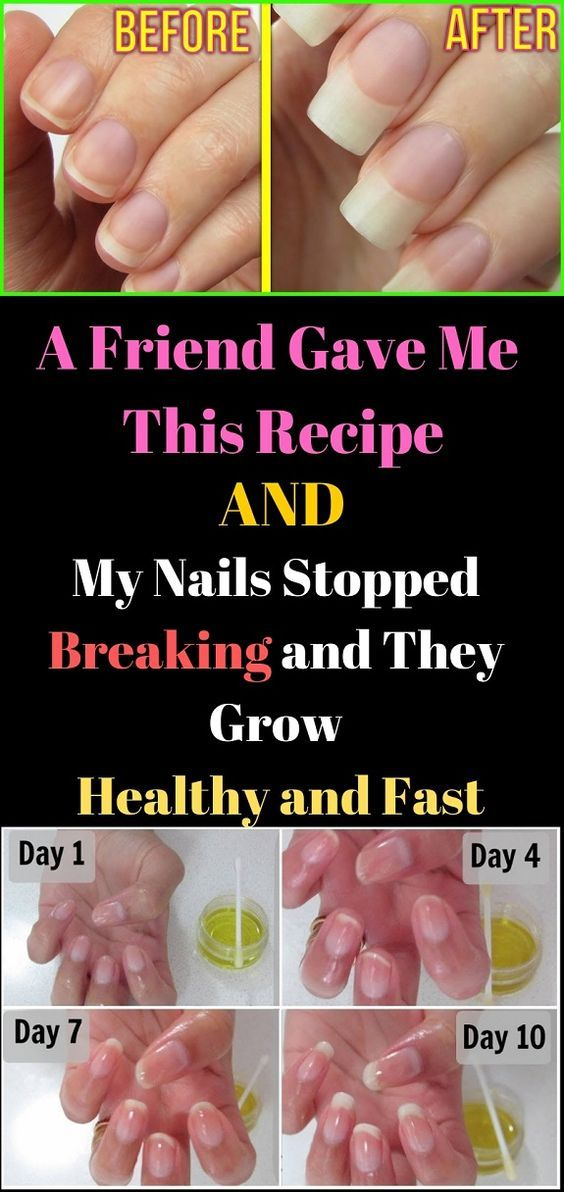 HOME REMEDIES A Good friend Gave Me This Recipe and My Nails Stopped Breaking and They Develop Wholesome