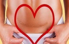3 verdades que todos deben saber acerca de las mujeres que han soportado una cesárea