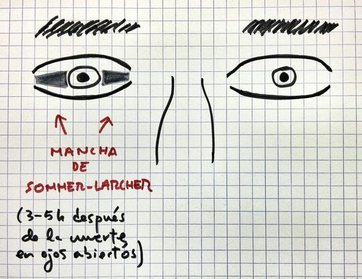 """""""Mancha de Sommer Larcher"""", en cadáveres con ojos abiertos 3-5h después de la muerte se transparenta la coroides."""