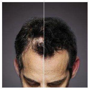 Další srovnání - před a po aplikaci zahušťovače vlasů Toppik