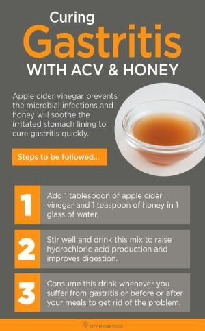 Apple Cider Vinegar for Curing Gastritis Apple cider vinegar prevents the microbial infections and honey will soothe the irritated stomach lining to cure gastritis quickly. by lucindaHarriet Newell