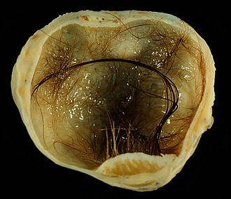 Terratoma Dermoid Cyst: Ovarian.